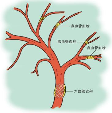 人体的血管是一个大系统
